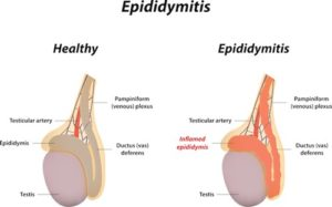 A picture showing epididymitis.