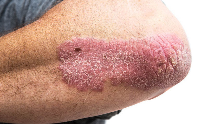 treat psoriasis at home